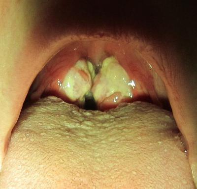 Гонококковый фарингит – причины, симптомы и лечение