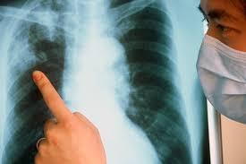 Сколько живут с туберкулезом легких без лечения