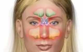 Признаки гайморита у женщин фото симптомы и лечение
