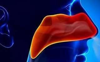 Рак носоглотки виды стадии симптомы