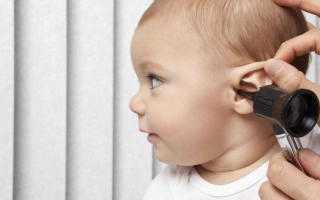 Что делать когда заложило ухо и звенит?