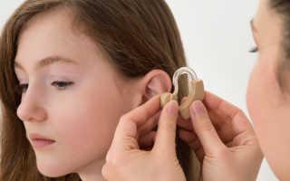 Как получить взрослому инвалидность по слуху?