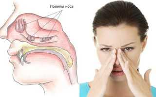 Лечение полипов в носу народными средствами