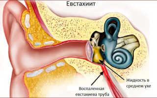 Почему что-то шуршит в ухе?
