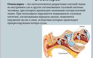 Можно ли лечить уши Нафтизином?