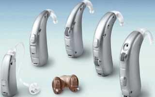 Как устроен слуховой аппарат человека?