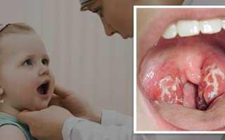 Как лечить мононуклеозную ангину у детей