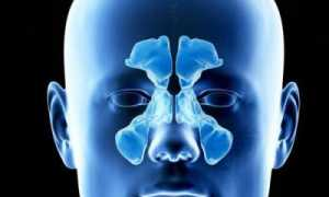 Киста в гайморовой пазухе лечение ответы доктора операция