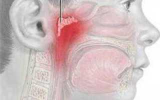 Как лечить кашель от аденоидов у ребенка?