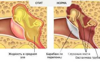 Как лечить катаральный отит у детей и взрослых?