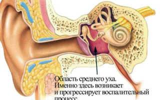 Почему шумит в ушах после простуды?