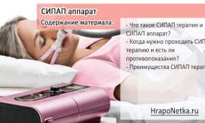 Аппарат СиПАП (CPAP)