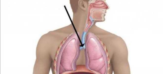 Признаки рака трахеи