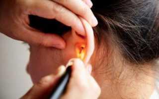 Как лечить уши каплями «Отипакс»?