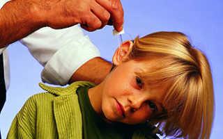 Что капать в ухо при отите у детей?