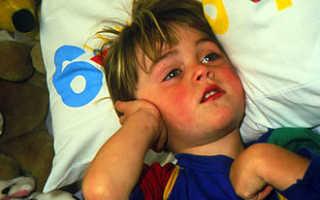Чем и как снять боль при отите у детей и взрослых?