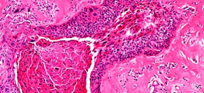 Симптомы и лечение рака миндалин и гланд