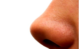 Как убрать синяк на носу быстро