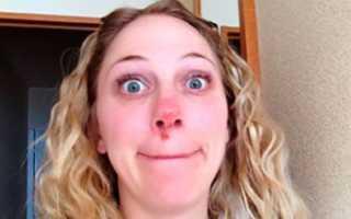 Герпес на носу причины лечение проявления как лечить