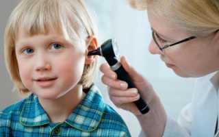 Как выявить и вылечить тугоухость у ребенка?